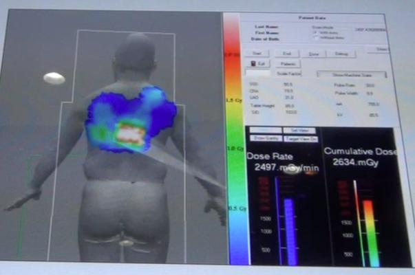 SST Group, Radiation Dosage Monitor, RDM, RSNA 2015