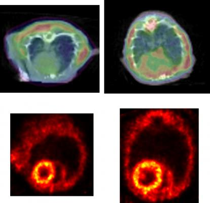 PET Imaging Shows Protein Clumping May Contribute to Heart Failure Development