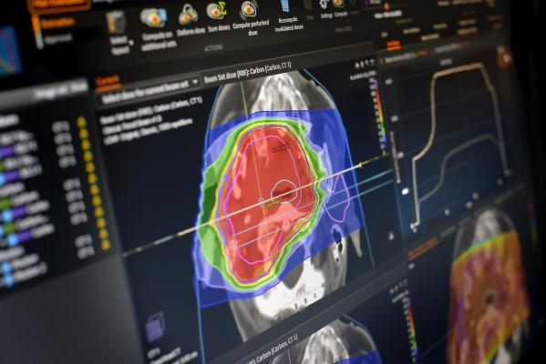 Heidelberg University Hospital Treats First Patient Using Carbon Ion Therapy With RayStation