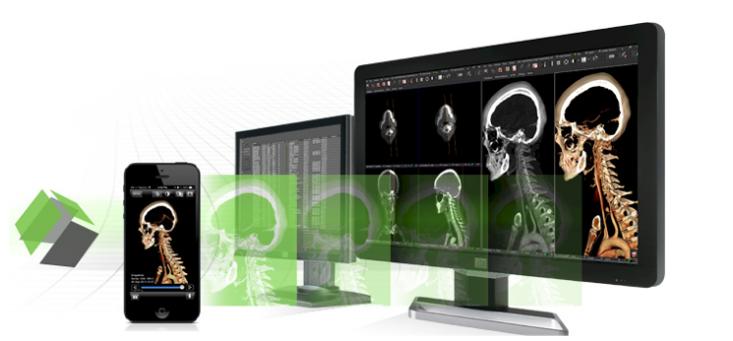 pacs rsna 2013 visage 7 software mobile devices breast imaging workstation