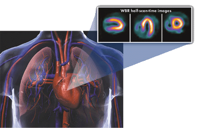 The Ultraspect xpress.cardiac nuclear imaging solution reduced SPECT radiation dose.