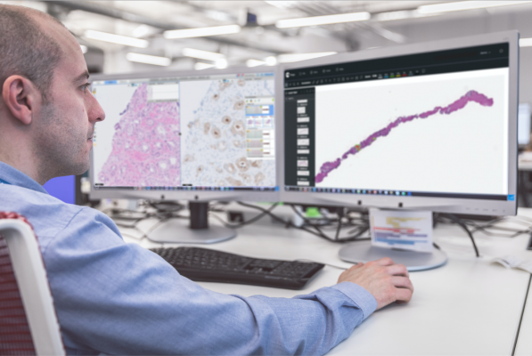 AI-based cancer assessment tools are poised to help pathologists improve speed and accuracy of cancer diagnostics, ultimately leading to better patient care