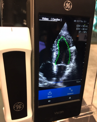 DiA's novel solution leverages AI to transform the way clinicians capture and analyze ultrasound images