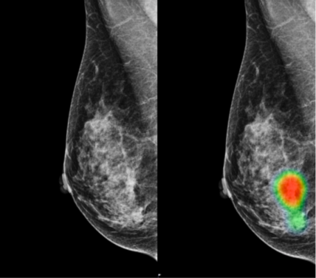 Ai Assisted Radiologists Can Detect More Breast Cancer With