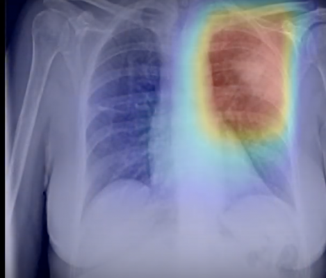 #COVID19 #Coronavirus #2019nCoV #Wuhanvirus #SARScov2 behold.ai has developed the artificial intelligence-based red dotalgorithm which can identify within 30 seconds abnormalities in chest X-rays. Wellbeing Software operates Cris, a widely used UKradiology Information System (RIS), which is installed in over 700 locations