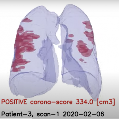 #COVID19 #Coronavirus #2019nCoV #Wuhanvirus #SARScov2 RADLogics announced new worldwide deployments and installations of the company's AI-powered solution to support chest computed tomography (CT) imaging for COVID-19 (Coronavirus) patients.
