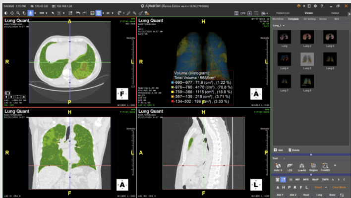 These solutions, theLung Density Analysis II (LDA-II)workflowfor Intuition and theEmergencyLung AI Suite, provide two deployment options for rapid access to lung segmentation and quantification tools that can be applied to a wide range of lung illnesses and have been optimized to adapt to the latest disease presentation states