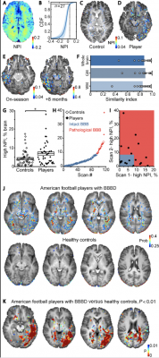 This image of DCE-MRI reveals persistent blood brain barrier disorder in American football players. Using brain imaging techniques and analytical methods, researchers can determine whether football players have CTE by measuring leakage of the blood-brain barrier. Image courtesy of Ben-Gurion University