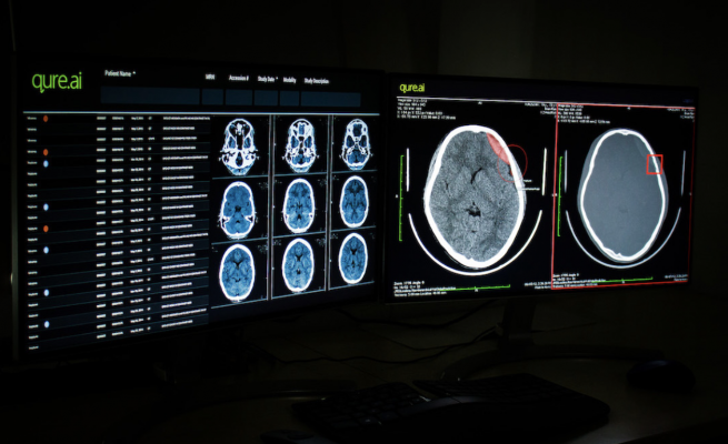 Imaging Artificial Intelligence (AI) provider Qure.ai announced its first US FDA 510(k) clearance for its head CT scan product qER. The US Food and Drug Administration's decision covers four critical abnormalities identified by Qure.ai's emergency room product.