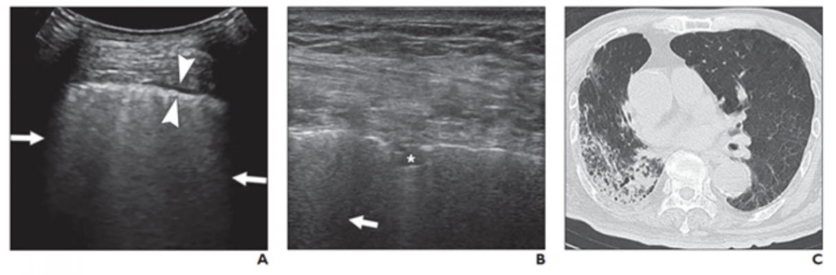 A and B, Lung ultrasound images obtained with convex (A) and linear (B) probes. Multiple confluent B-lines (arrows), patchy pulmonary consolidation (asterisk, B), and thickened pleural line (between arrowheads, A) are visualized. C, Chest CT image shows reticular and interlobular septal thickening and patchy, focal opacities associated with architectural distortion. This patient was classified in critical group and was assigned to severe group for statistical analysis.