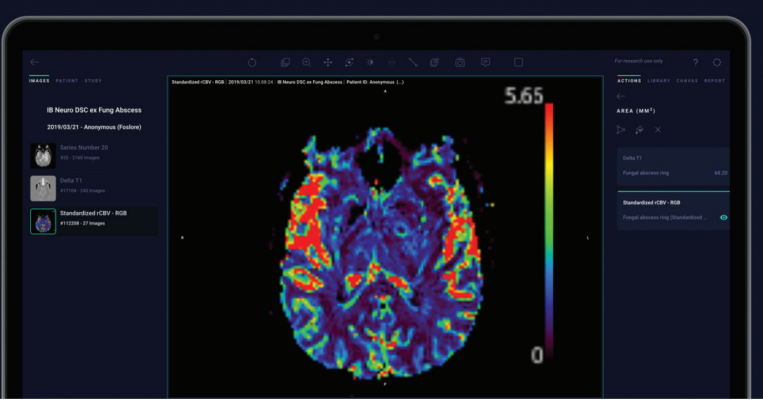 The above image shows a quantitative rCBV map, automatically generated within the Arterys platform