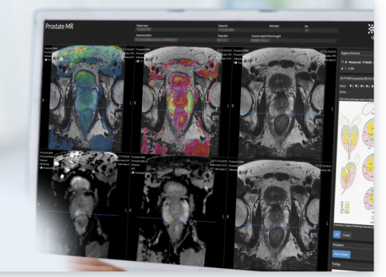 The FDA clearance, Quantib's 6th to date, marks the first time a comprehensive AI prostate solution will be available to radiologists in the United States
