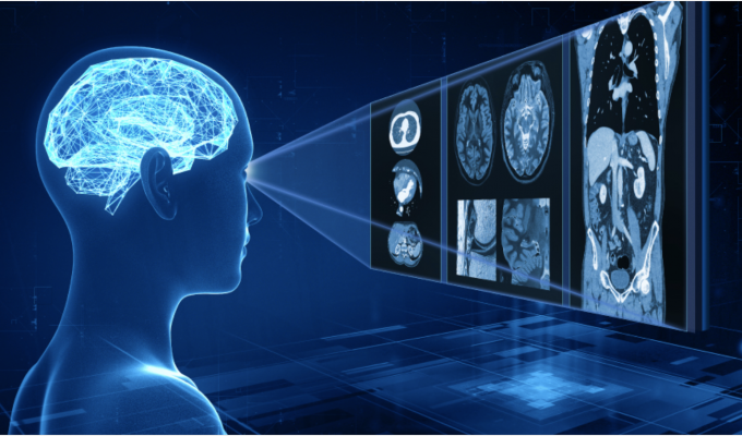 Showcasing Advanced intelligent Clear-IQ Engine (AiCE) Deep Learning Reconstruction (DLR) technology on wider range of clinical applications, more modalities and systems