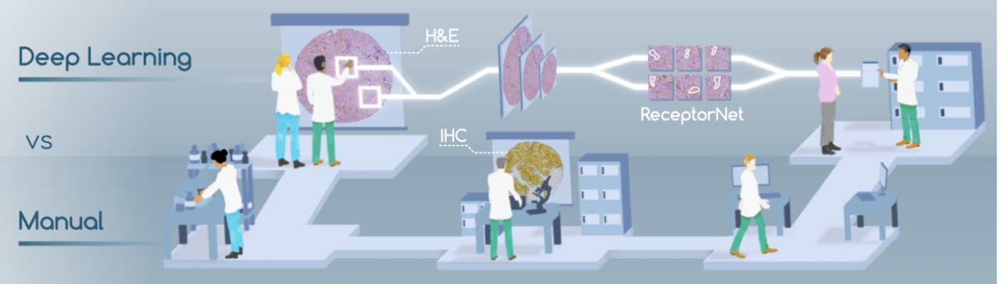 Published in Nature Communications, ReceptorNet is a breakthrough deep-learning algorithm that can determine hormone-receptor status - a crucial biomarker for clinicians when deciding on the appropriate treatment path for breast cancer treatment