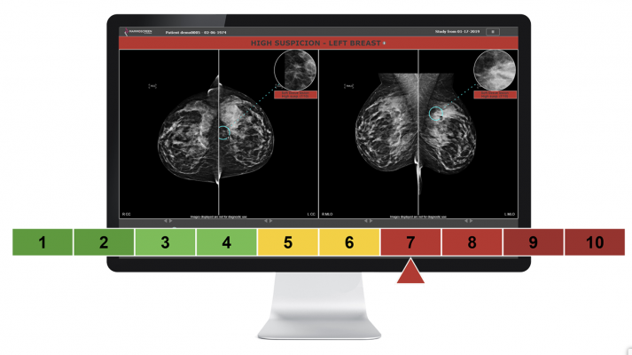 This cutting-edge technology assists radiologists in the interpretation of screening mammograms and allows them to diagnose breast cancer earlier and more accurately