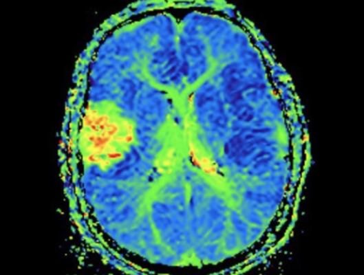 Detroit-based magnetic resonance imaging (MRI) technology company SpinTech, Inc. has acquired medical-imaging research and technology developer Magnetic Resonance Innovations, Inc. (MR Innovations).