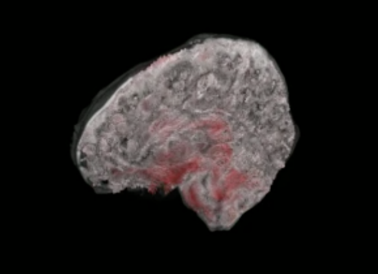 """3D aMRI not only provides a stunning look inside the """"beating brain"""", but it can also measure this physiological motion in all directions. Here, the amplitude of brain motion is overlayed for each brain slice and orientation in 3D. Image credit: 3D aMRI method outlined in Abderezaei et al. Brain Multiphysics (2021); Terem et al. Magnetic Resonance in Medicine (2021)."""