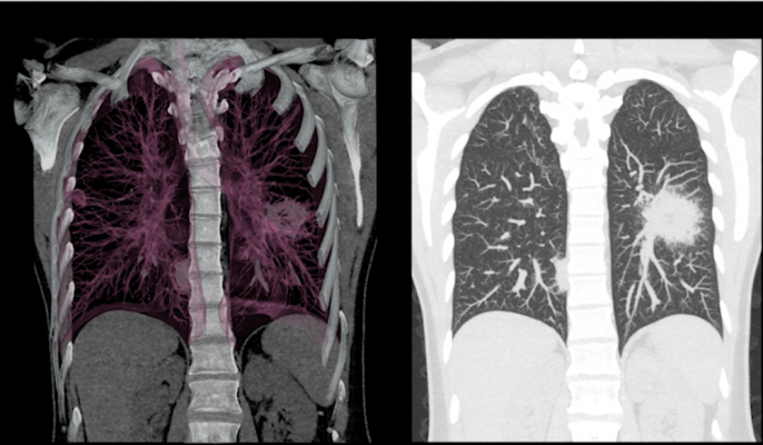 Patients with primary lung cancer detected using low-dose computed tomography screening are at reduced risk of developing brain metastases after diagnosis, according to a study published in theJournal of Thoracic Oncology.