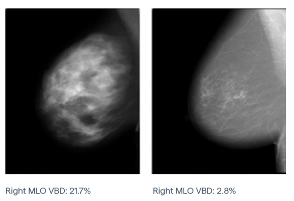 Right mediolateral oblique (MLO) mammograms for different women with the same breast thickness but varying breast density.