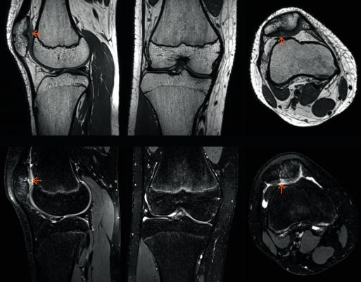 FDA Clears Siemens Healthineers' GOKnee3D MRI Application