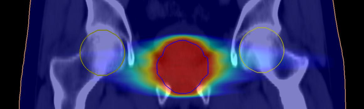Synthetic CT Images Suitable for Prostate Cancer Radiotherapy Planning