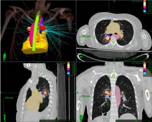 A phase 1 clinical trial led by investigators at the University of Chicago Medicine testing the effects of stereotactic body radiotherapy for treating multiple metastases has determined that treatments used for single tumors can also be safely used for treating patients with multiple metastases.