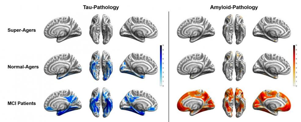 Tau (blue) and amyloid (orange) distribution patterns for super-agers, normal-agers and MCI patients, when compared to a group of younger, healthy, cognitively normal, amyloid-negative individuals. Brain projections are depicted at an uncorrected significance level of p < .0001. Color bars represent the respective t-statistic. Image courtesy ofMerle C. Hoenig, Institute for Neuroscience and Medicine II - Molecular Organization of the Brain, Research Center Juelich, Juelich, Germany, and Department of Nucle