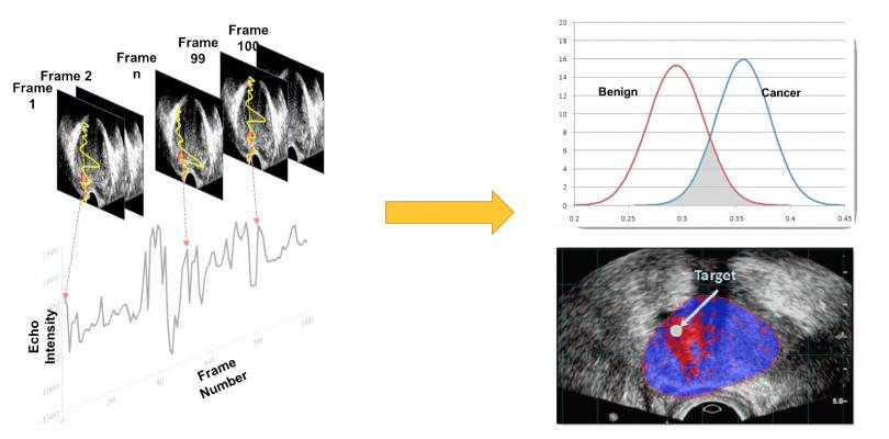 Improved Imaging for Prostate Cancer Could Lead to More Effective Treatment