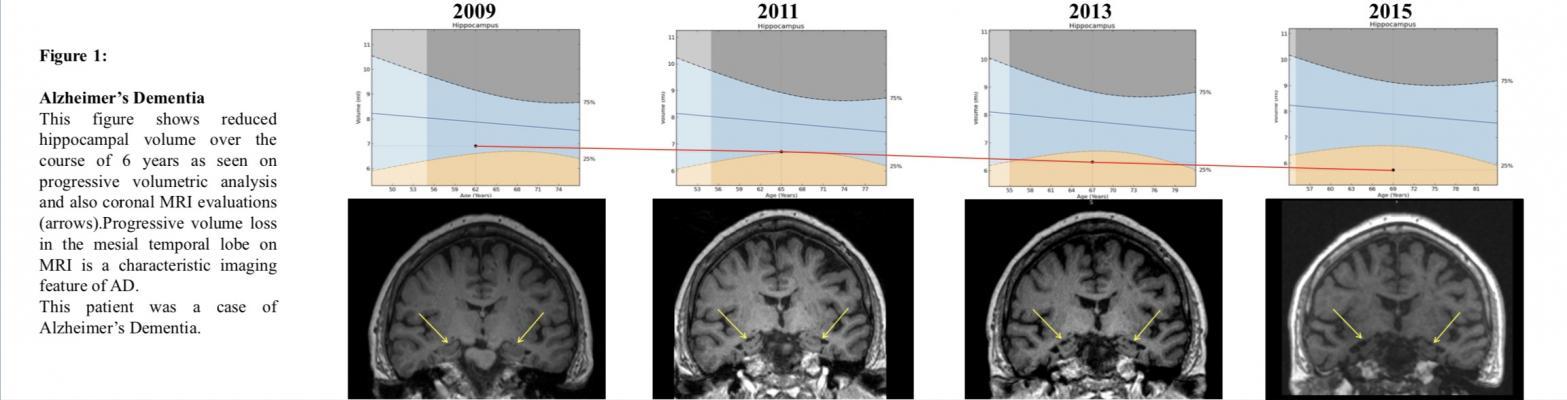 Reduced hippocampal volume on MRI