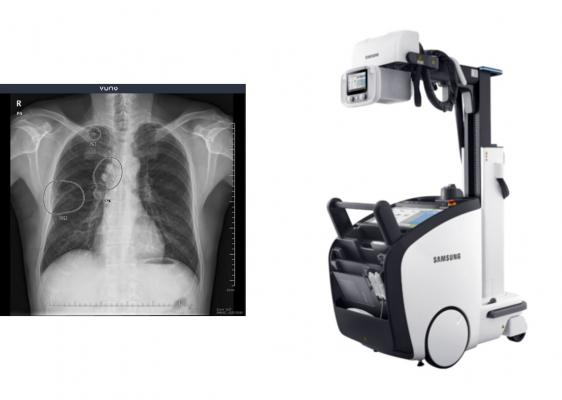 VUNO's road-tested, clinically-proven chest X-ray detection software is reshaping the delivery of medical imaging diagnostics by being fully integrated with Samsung Electronics' X-ray system