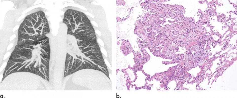 Pulmonary imaging is important in the diagnosis of the acute lung injury associated with vaping, known as electronic cigarette or vaping product use-associated lung injury (EVALI), according to a special review article published in the journalRadiology