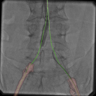 An example of Vessel Assist used to create vessel centerlines through a CTO to help guide revascularization in the cath lab.