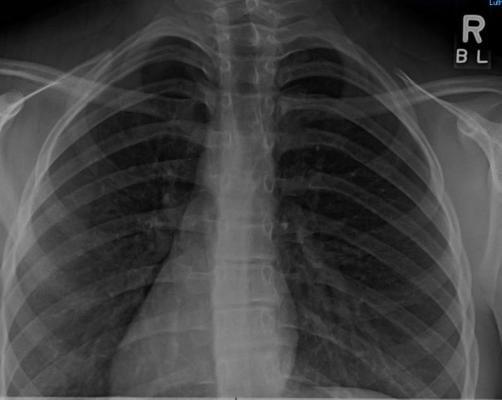 Clinical Study Bird Flu Radiology