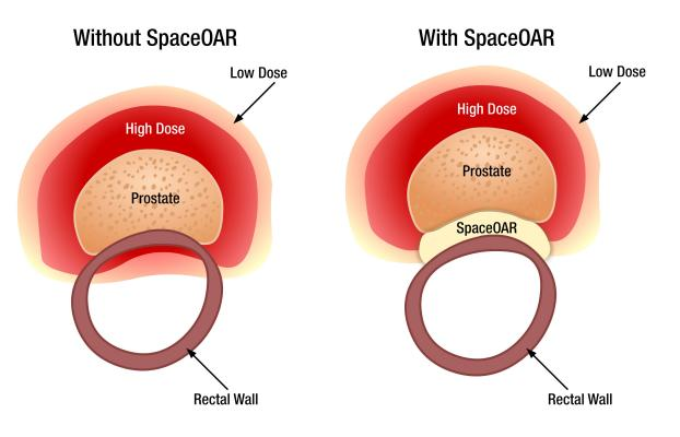 Augmenix, SpaceOAR, pivotal trial, prostate-rectum spacing system, positive