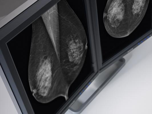 Barco tomosynthesis 5mp mammography systems flat panel displays