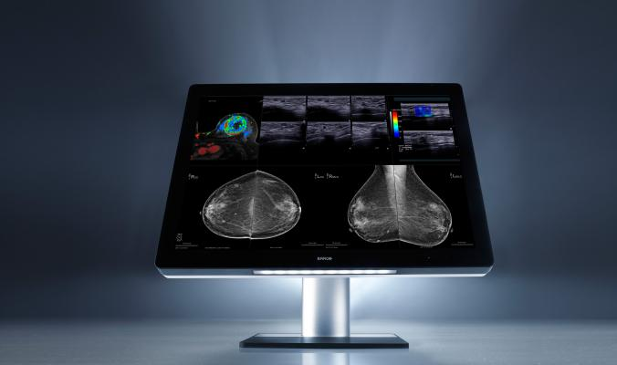 Barco, patent, I-Luminate technology, breast imaging, Just Noticeable Differences, mammography