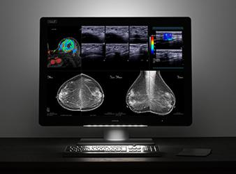 Barco Presents Multimodality Imaging Display Solutions at SIIM 2017