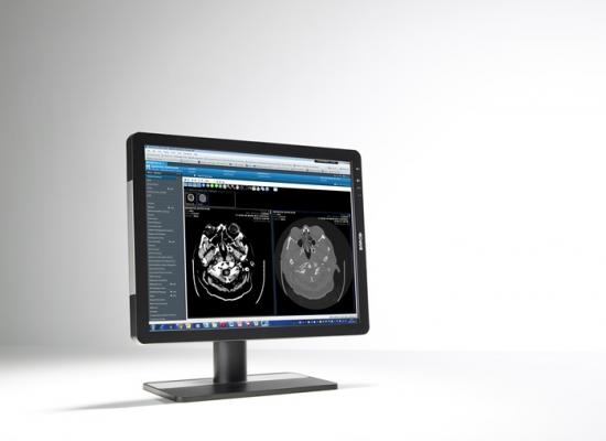 "Barco Eonis 21"" Flat Panel Displays RSNA 2014"
