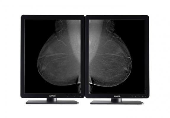 Barco, Nio 5MP LED, flat panel displays, mammography