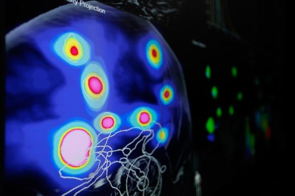 Brainlab Introduces New Concept for Treatment of Multiple Brain Metastases