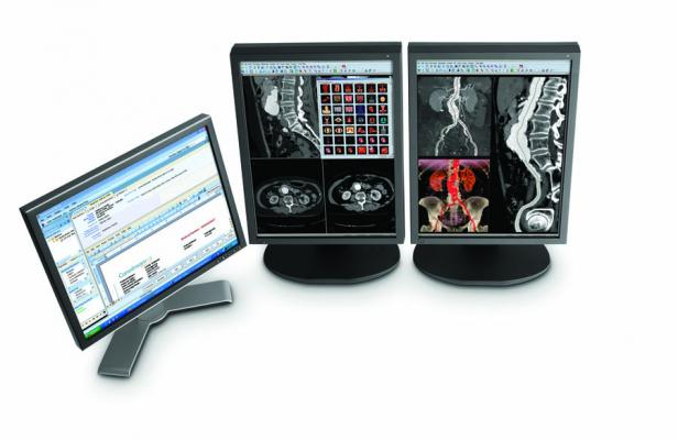 Nih Issues Radiology Information System Contract To Carestream