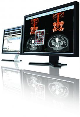 RSNA 2013 Carestream Vue PACS