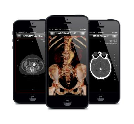ResolutionMD, version 5.0, Calgary Scientific, mobile devies, remote viewing