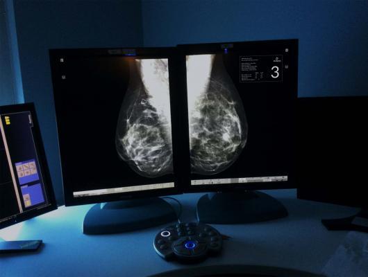 breast cancer, stage I-III, irradiation, regional nodes, EORTC, Philip Poortmans