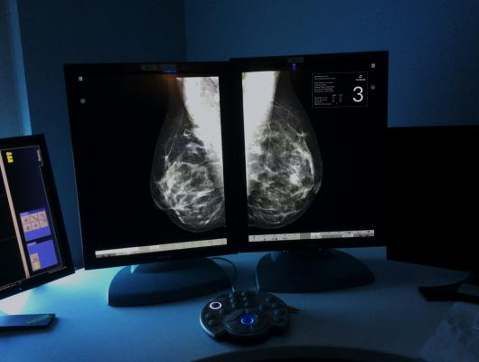 Densitas, Research Edition, mammography, breast density, ECR 2015
