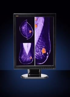 Women's Healthcare, Flat Panel Displays, RSNA 2014, DBICK50-LED