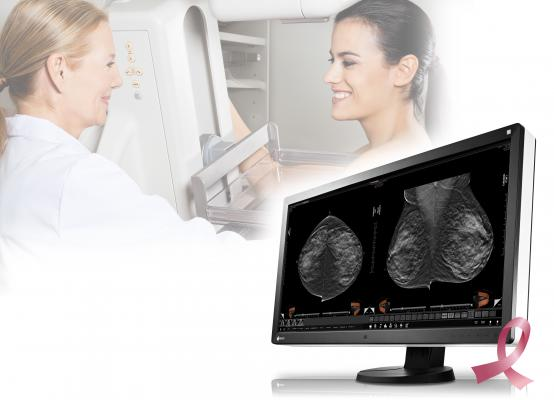 siemens tomosynthesis fda approval The food and drug administration (fda) has approved a breast tomosynthesis add-on for siemens healthcare's mammomat inspiration.
