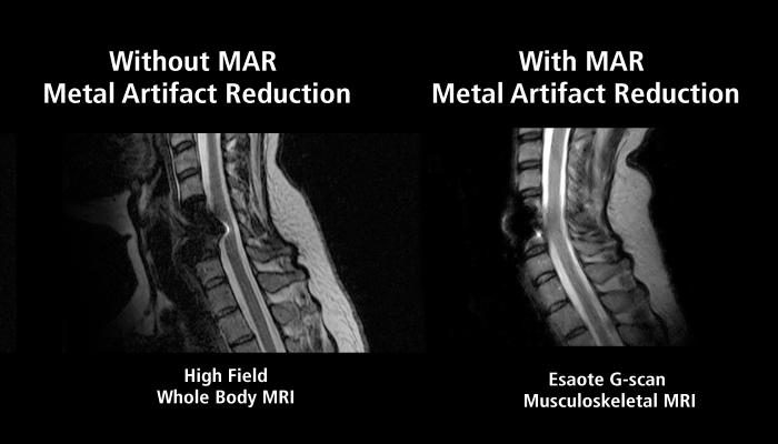 rsna 2013 mri software systems esaote metal artifact comparison