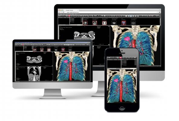Voyager Integrates HDVR Into Fovia Web-enabled PACS