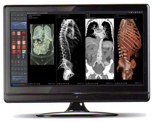 International Footprint Expanded for Embedded HDVR